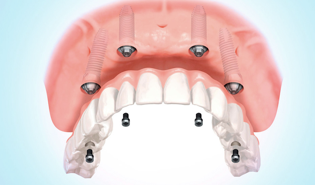 implantes dentales en Burgos