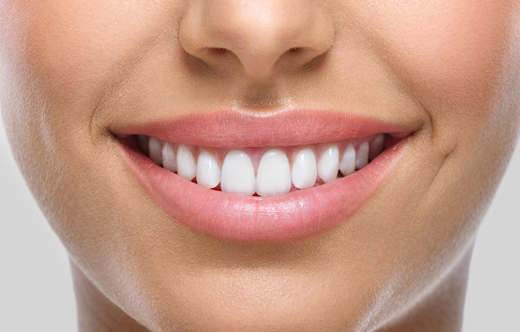 Estética dental en Burgos