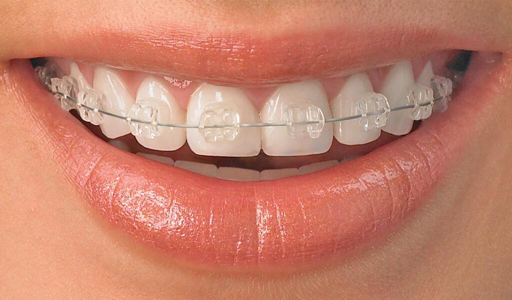 ortodoncia en Burgos
