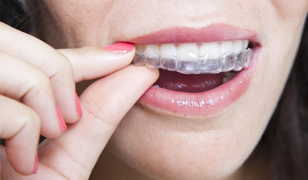 ortodoncia invisalign en Burgos