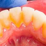 Higiene dental en Burgos
